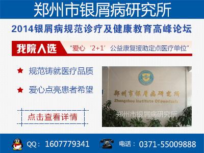 郑州看银屑病的医院哪家最好