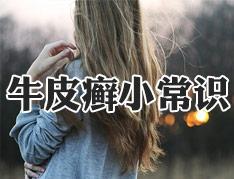牛皮癣发作瘙痒难忍怎么办?.jpg