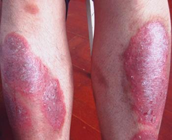 红皮型银屑病能传染别人吗