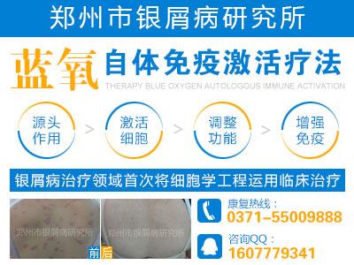 郑州市银屑病研究所治疗效果怎么样