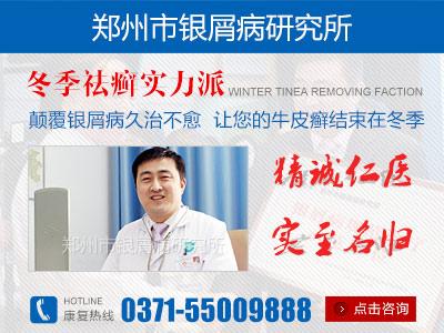 郑州治疗银屑病最正规医院