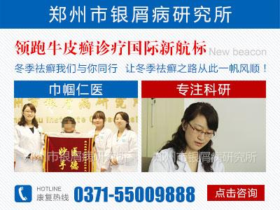 郑州牛皮癣哪个医院看得好