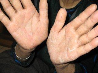 手部有银屑病应怎么治疗