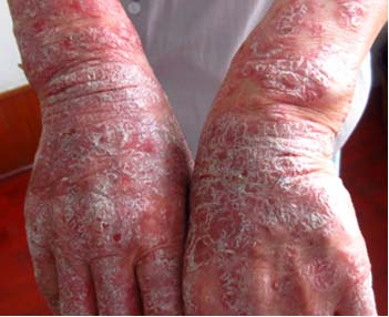 银屑病症状表现是什么
