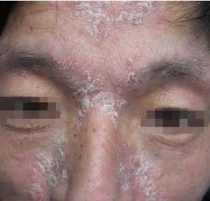 面部牛皮癣有什么症状