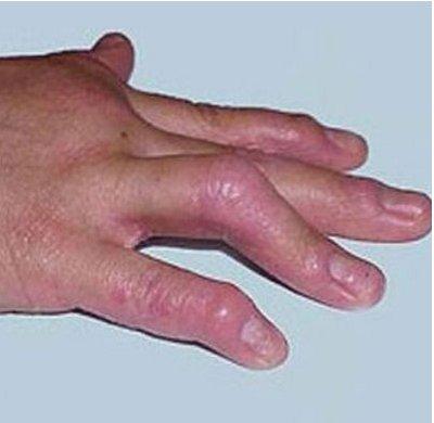 手部牛皮癣表现有哪些