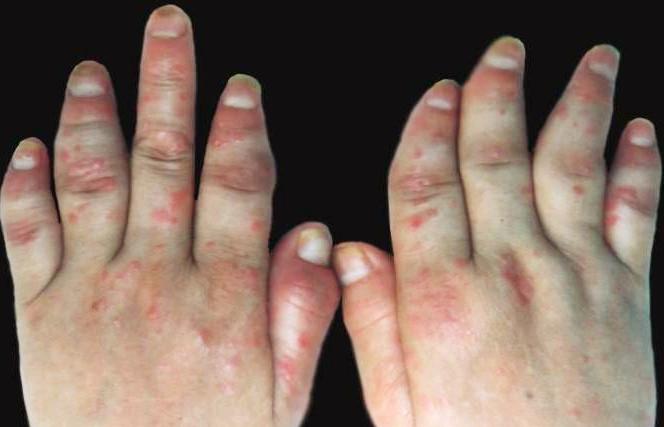 关节病型牛皮癣症状特点有哪些