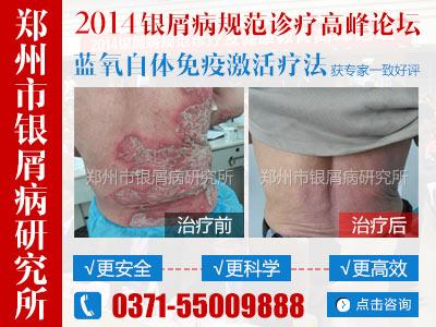 濮阳市牛皮癣医院